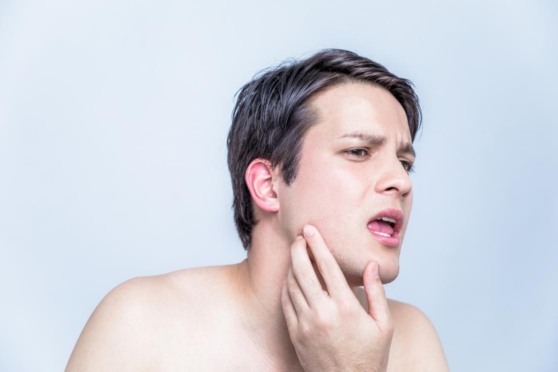 hpv warts on face treatment human papillomavirus causes