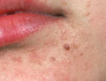 giardia se rezolva fara tratament lip cell papilloma