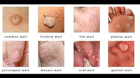 Human papillomavirus genital warts treatment. Înțelesul