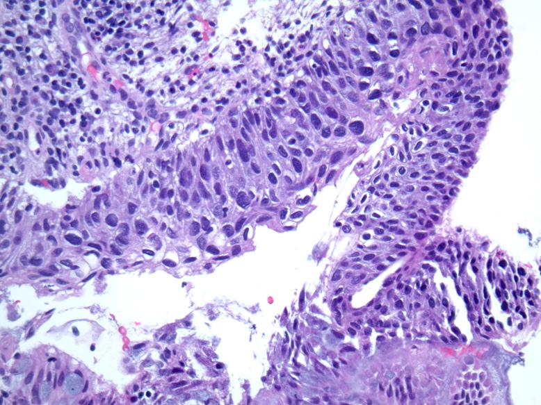 Pathology of papillomavirus.