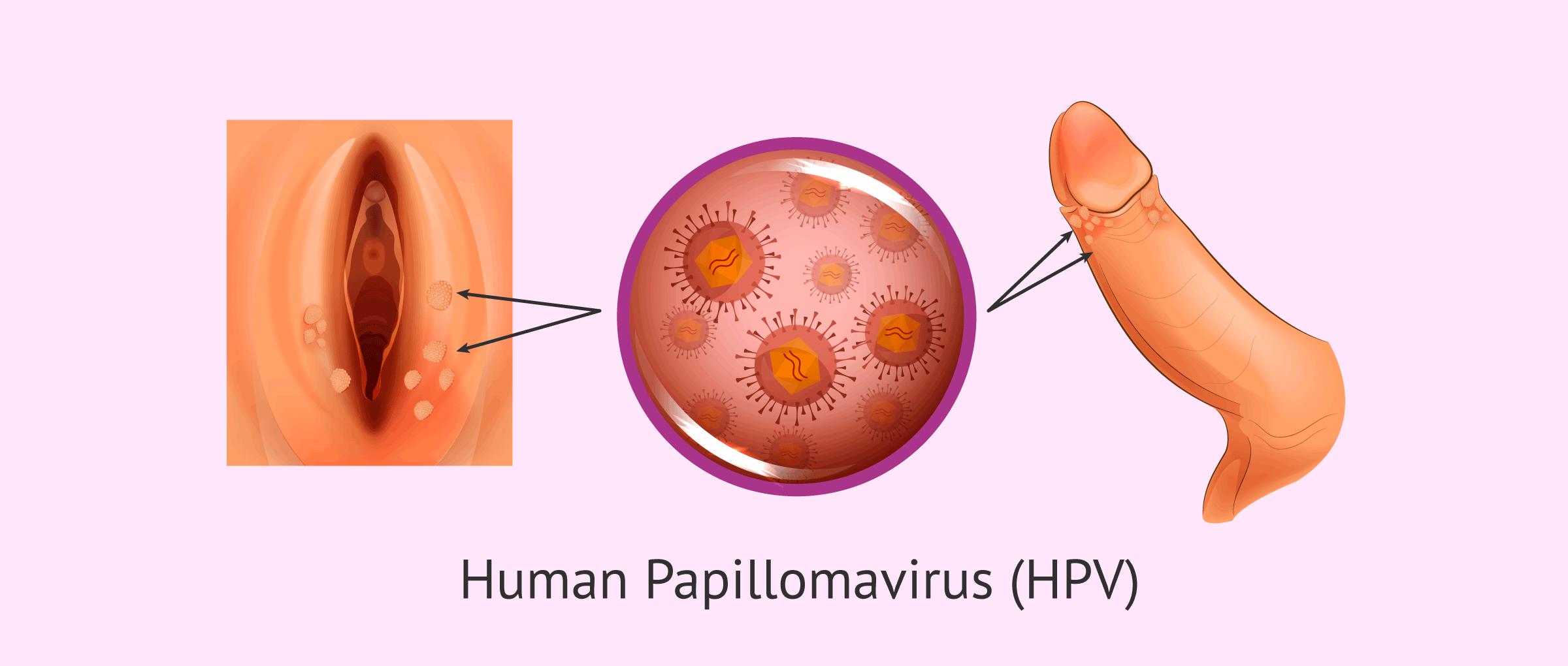 human papillomavirus warts cause
