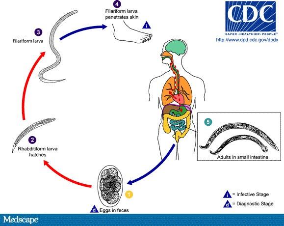Infecție tsepnem
