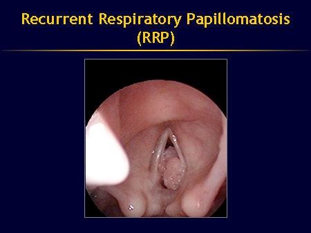 Papilloma vestibular adalah - transroute.ro