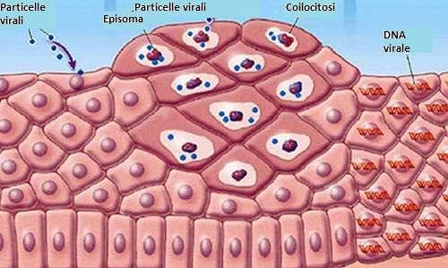 Manifestazioni del papilloma virus, Venozol crema impotriva varicelor