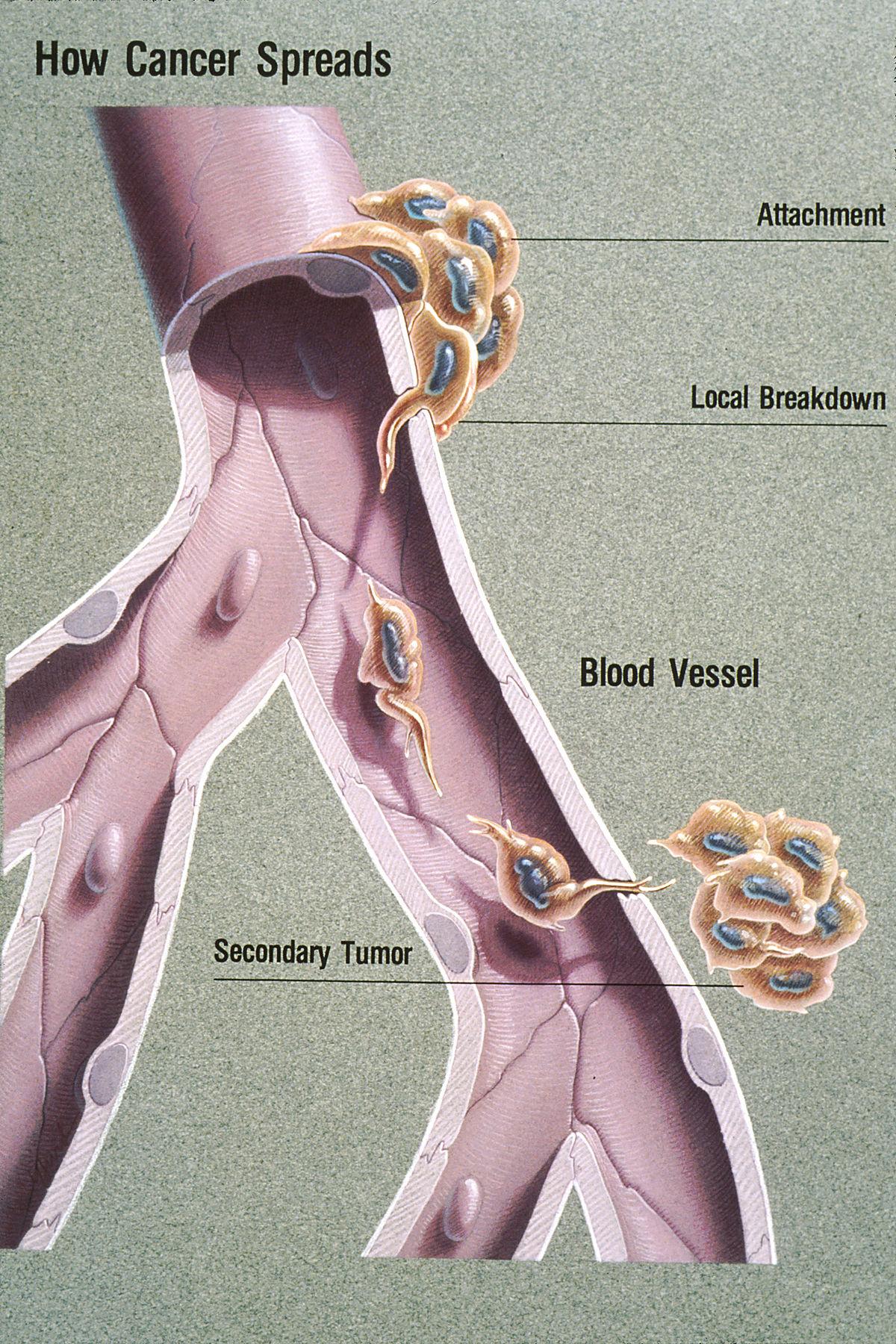 metastatic cancer disease
