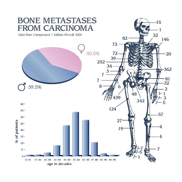 metastatic cancer knee pain hyena soparla vierme