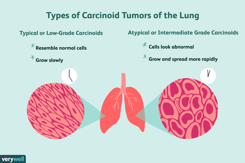 neuroendocrine cancer lung