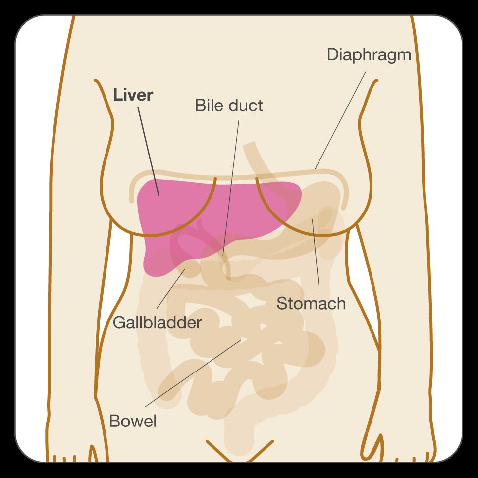 colorectal cancer bleeding bruciare il papilloma virus