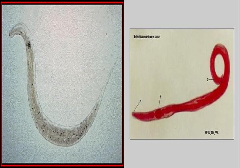 oxyuris vermicularis( cacing kremi) detoxifierea colonului cu sucuri