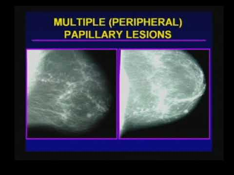 Papillary lesion left breast icd 10
