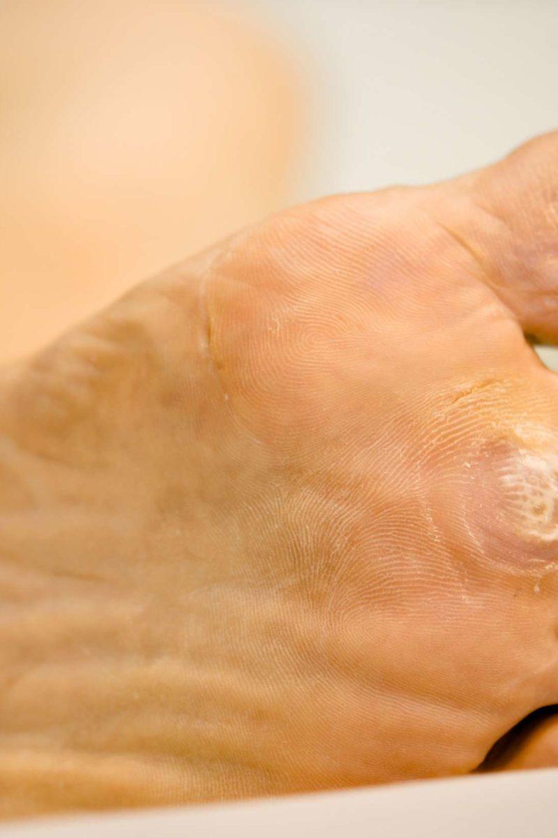 papilloma feet