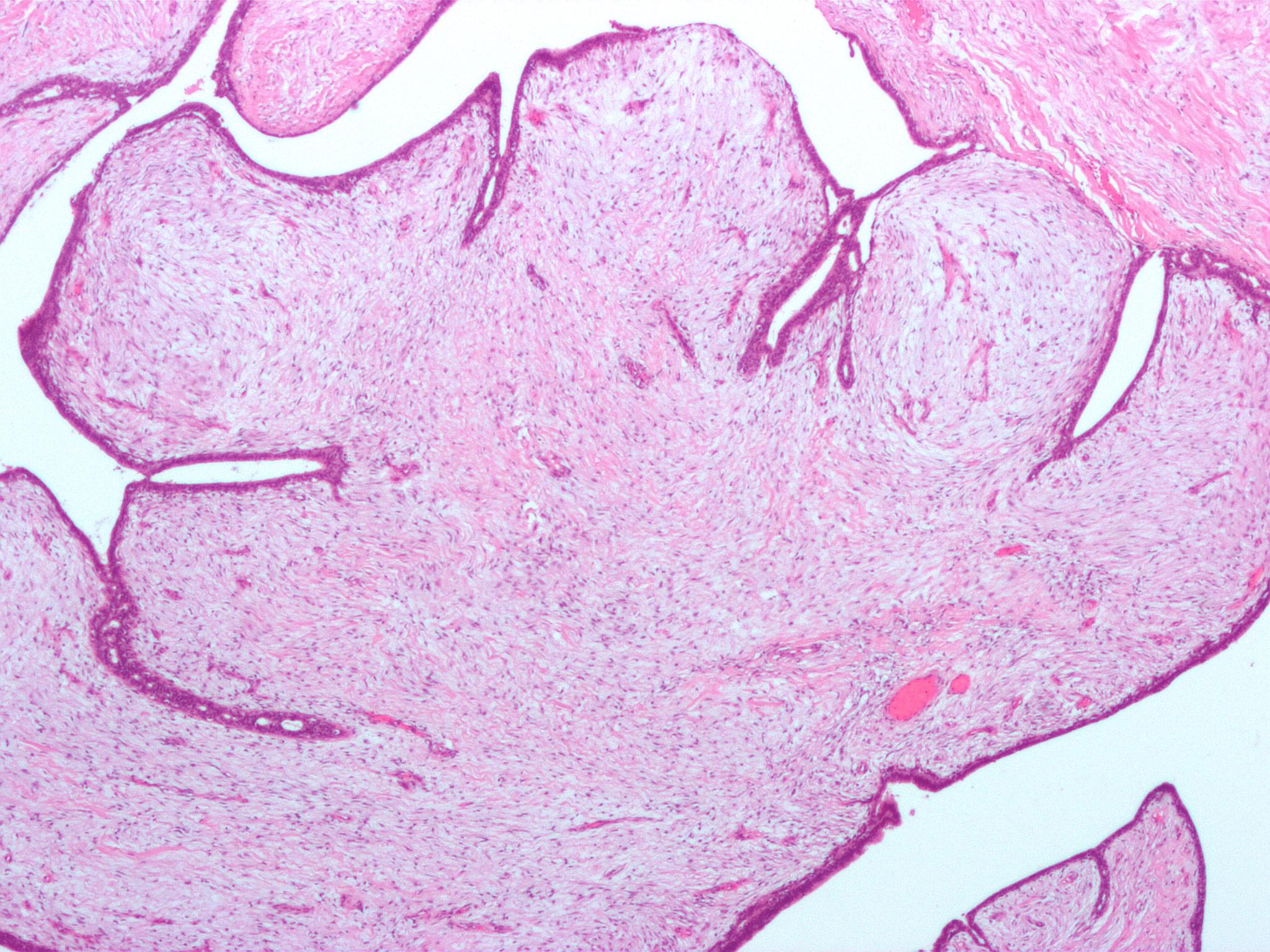 enterobius vermicularis verme cum le pot aduce viermii