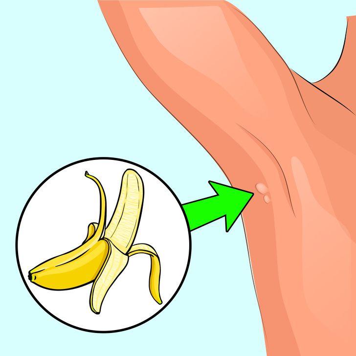 papillomavirus genital symptomes parazite simptome tratament diagnostic