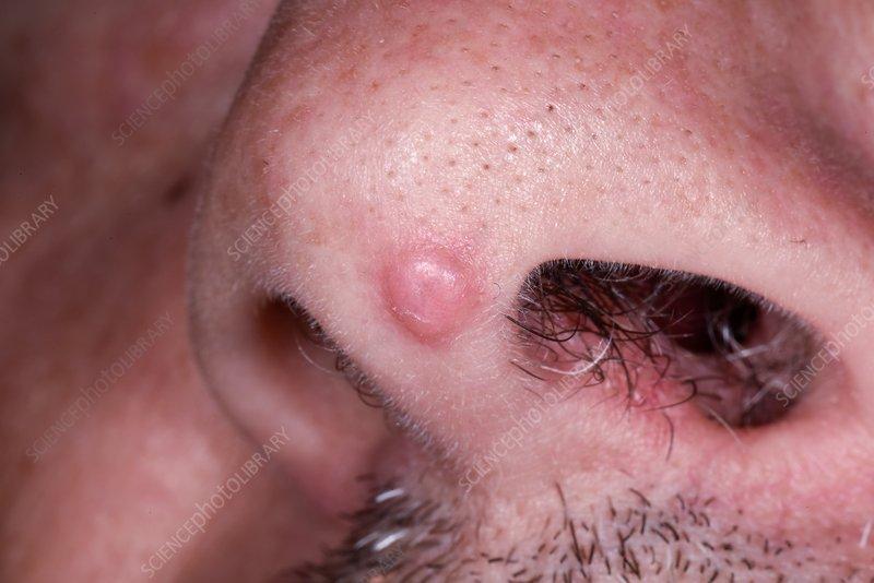 hpv in nasal cavity enterobius vermicularis glista