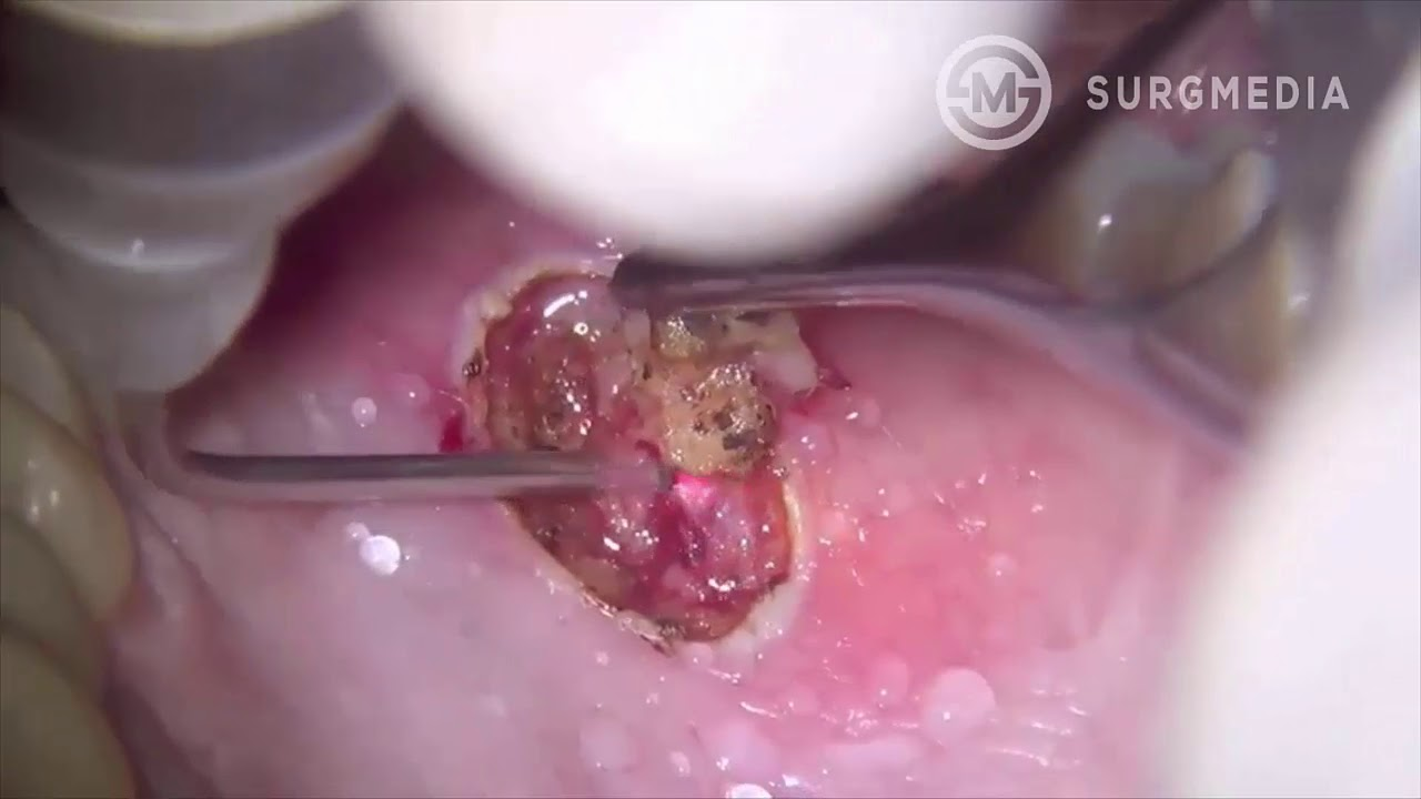 Squamous cell papilloma tongue removal,