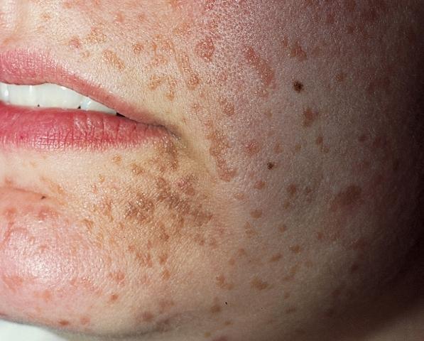 Afectează infecția HPV și copii?