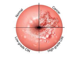 papilloma virus non si guarisce cancer de colon biodescodificacion