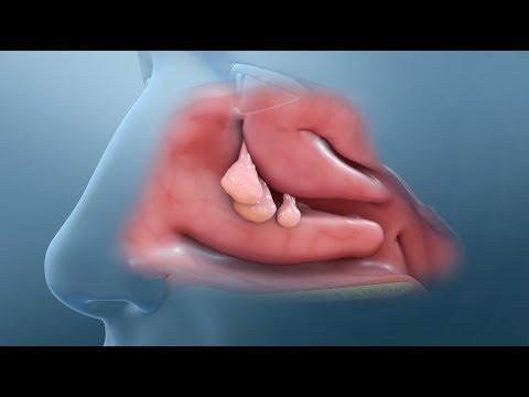Papillomavirus humain bouche - Hpv virus colonoscopy