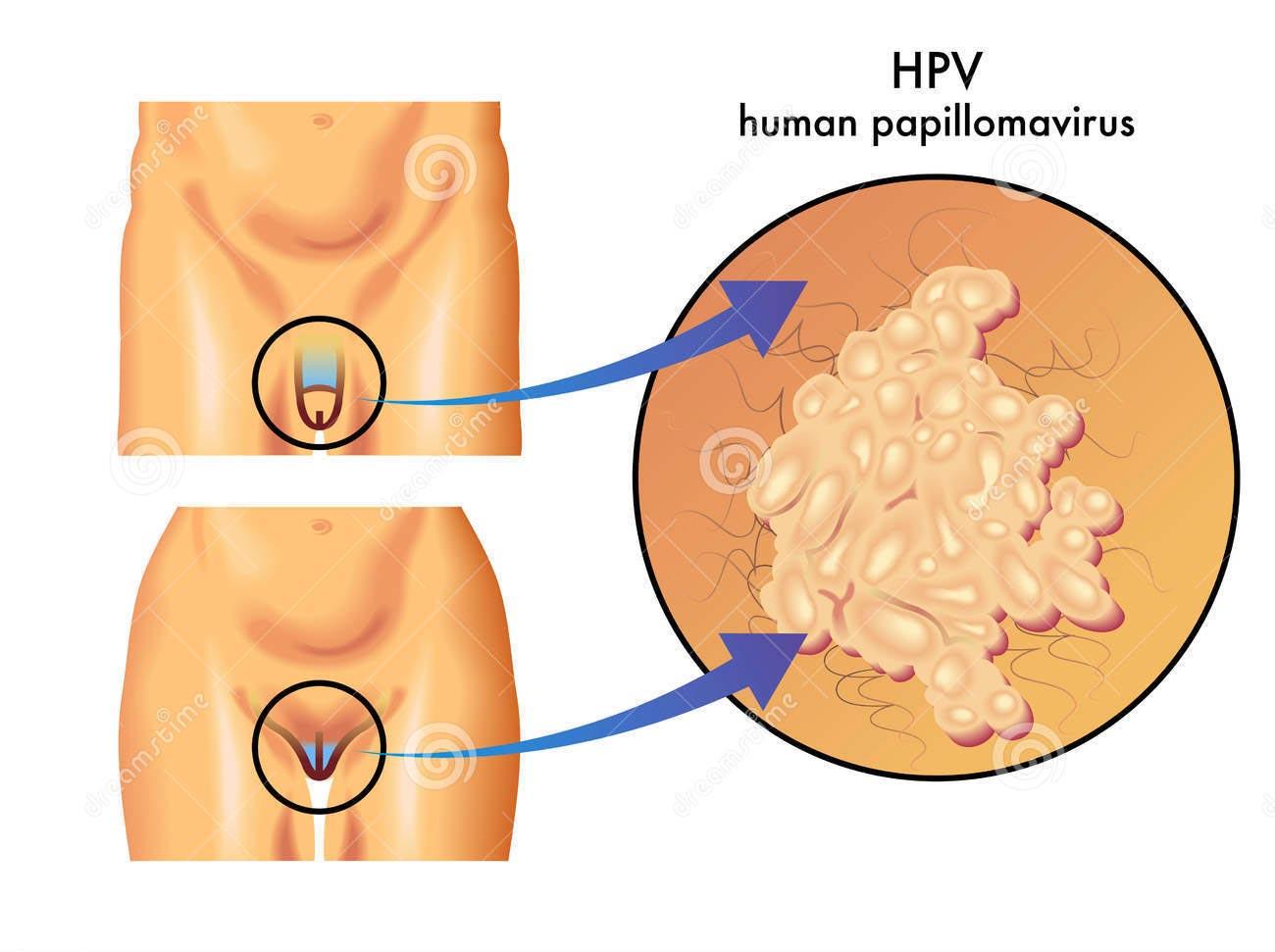 papilloma virus per l uomo