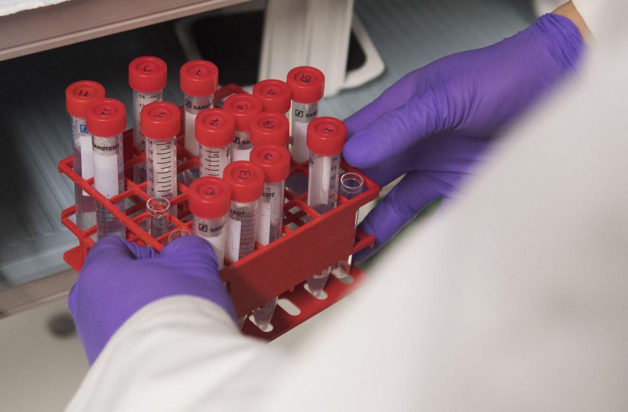 papillomavirus frottis normal