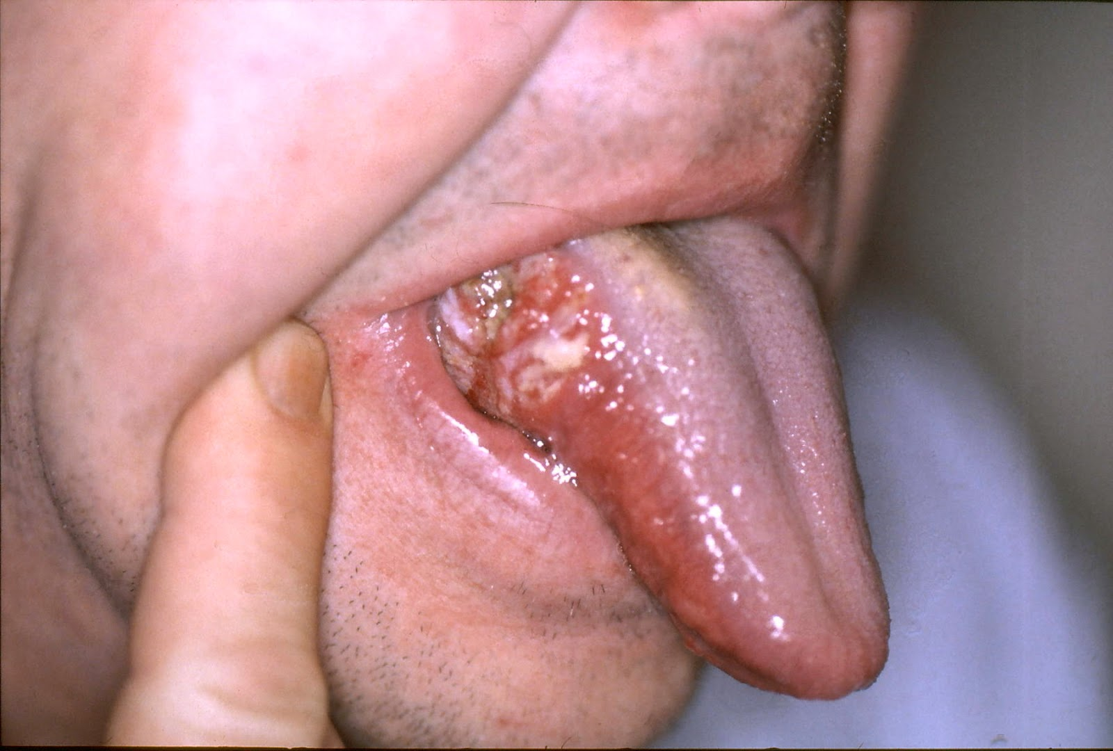 hpv throat cancer actor cancerul pancreatic simptome