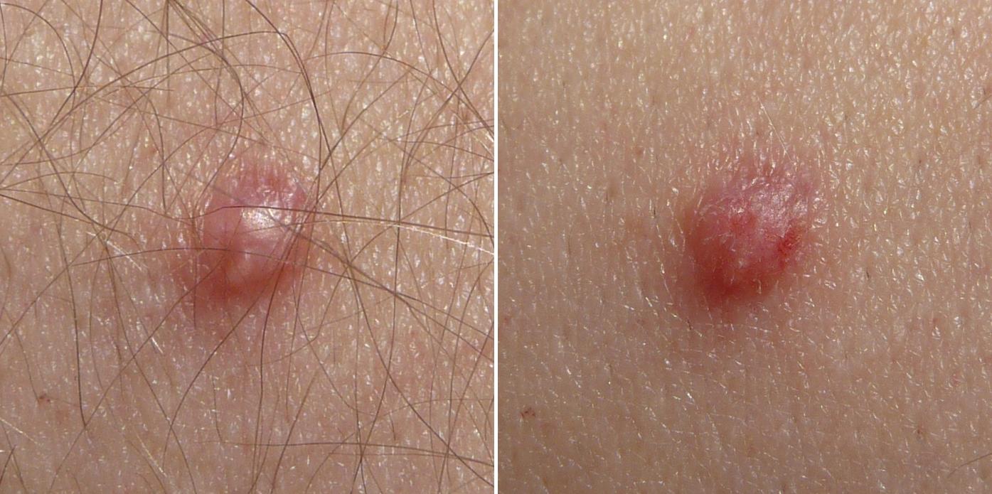papillomavirus homme image cancerul de piele se poate transmite