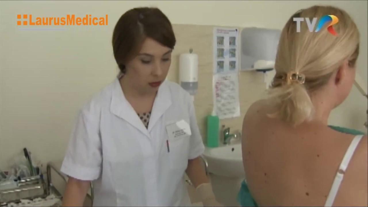 Crioterapia, metoda de tratament pentru veruci, cheratoze, papiloame | Regina Maria