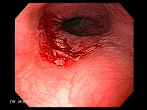 anemie hipocroma microcitara deschide fasciculul de lumină