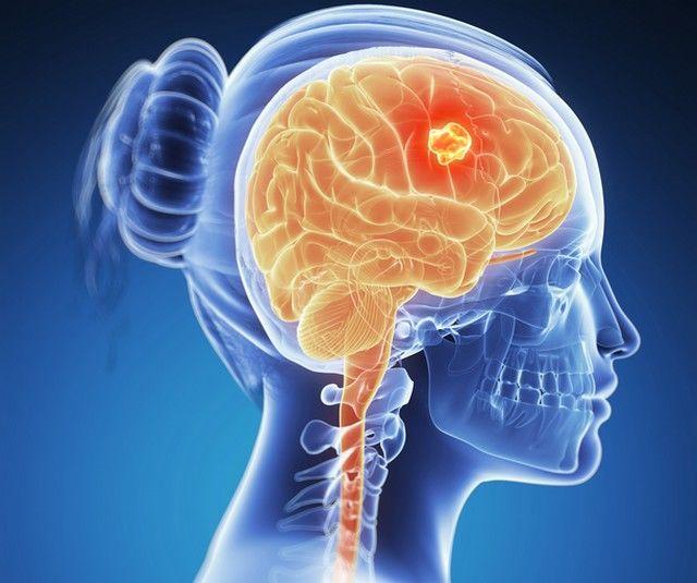 paraziți în simptomele creierului