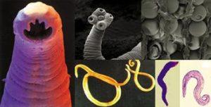 Helminti i paraziti - Paraziti u ljudskom telu
