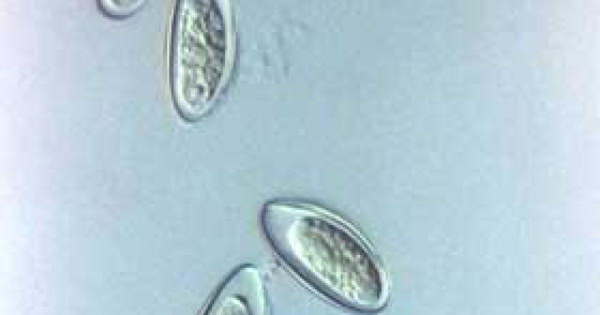 parazitii ochiului