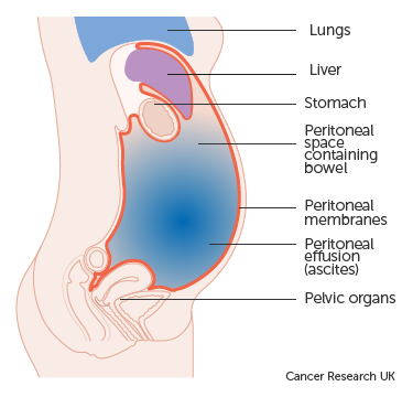 peritoneal cancer abdominal pain