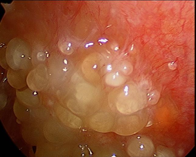 tratamentul viermilor astmatici