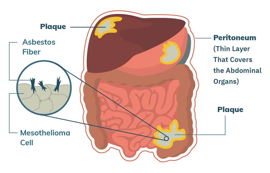 Peritoneal cancer no treatment - transroute.ro