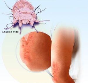 Sfaturi pentru tratamentul scabiei - Dr. Mihai Lupu dermatolog