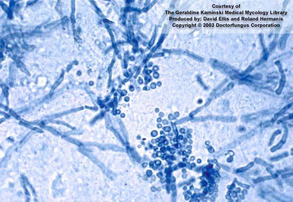 intraductal papilloma ck5/ 6