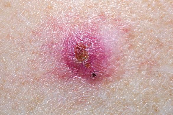 se vindeca cancerul de piele giardia vierme
