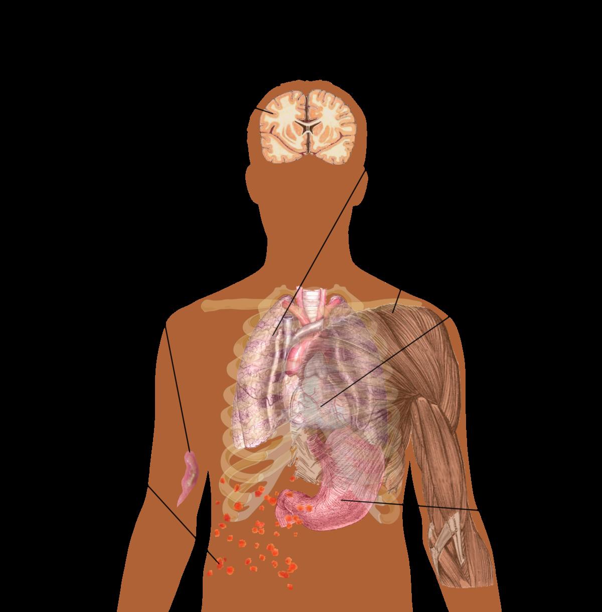 simptomele dipyllobothriasis la adulți papillomavirus vaccin conditions