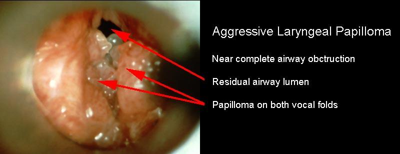 Squamous cell papilloma larynx V-ar putea interesa