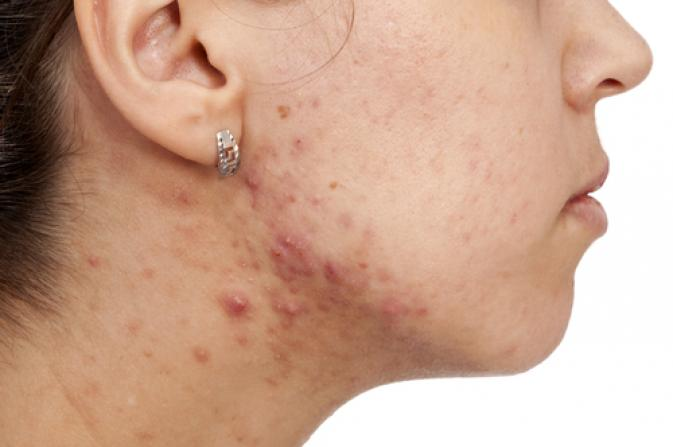 tratamentul viermilor acneici