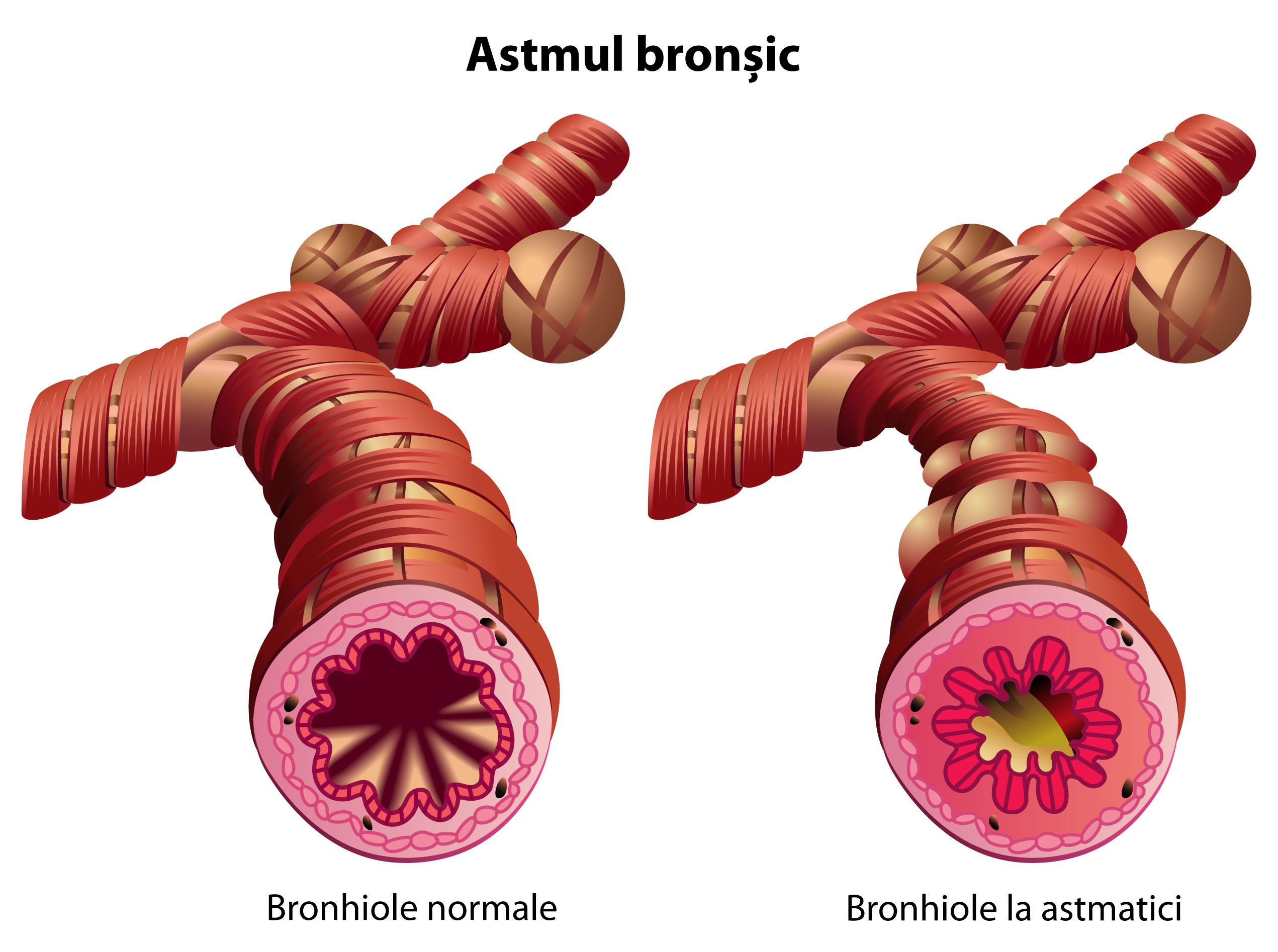 tratamentul viermilor astmatici viermi paraziti simptome