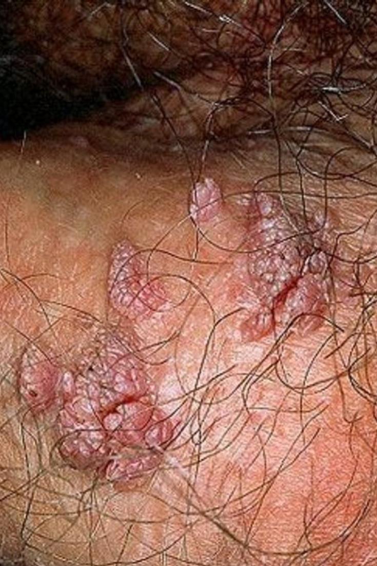 verrue type papillomavirus