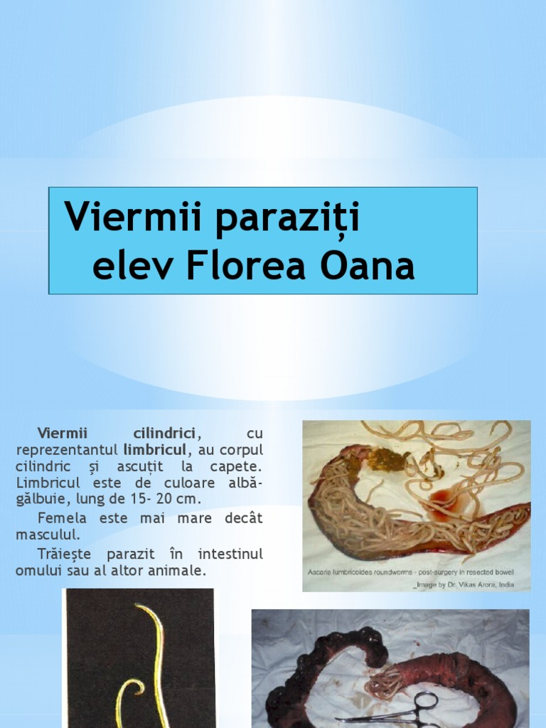 viermele roții umane are
