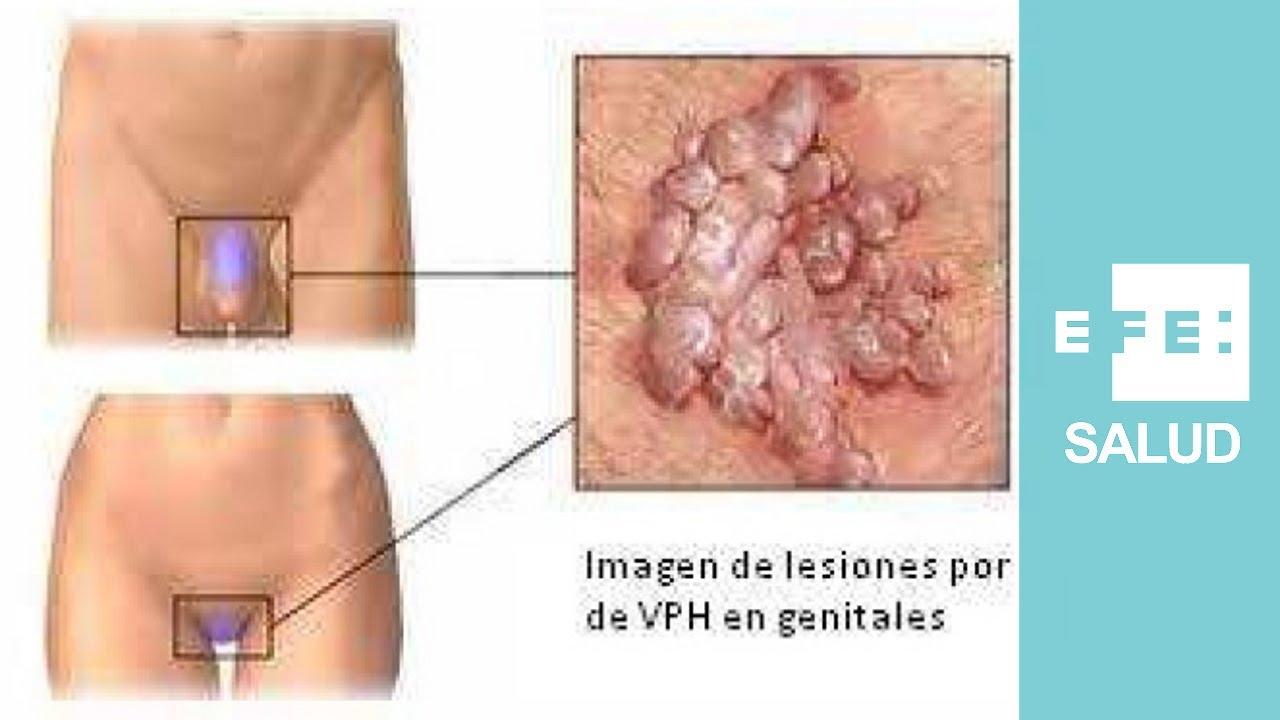 viermii umani indică un tratament viermi la copii sub 11 ani