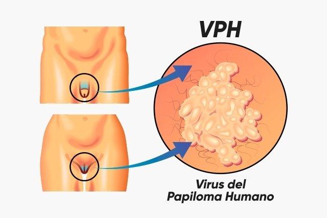 Tratamiento para el virus papiloma humano en mujeres. Displasia Cervical