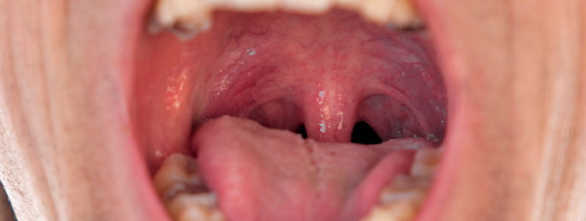 vph en la boca primeros sintomas papilloma of pharynx