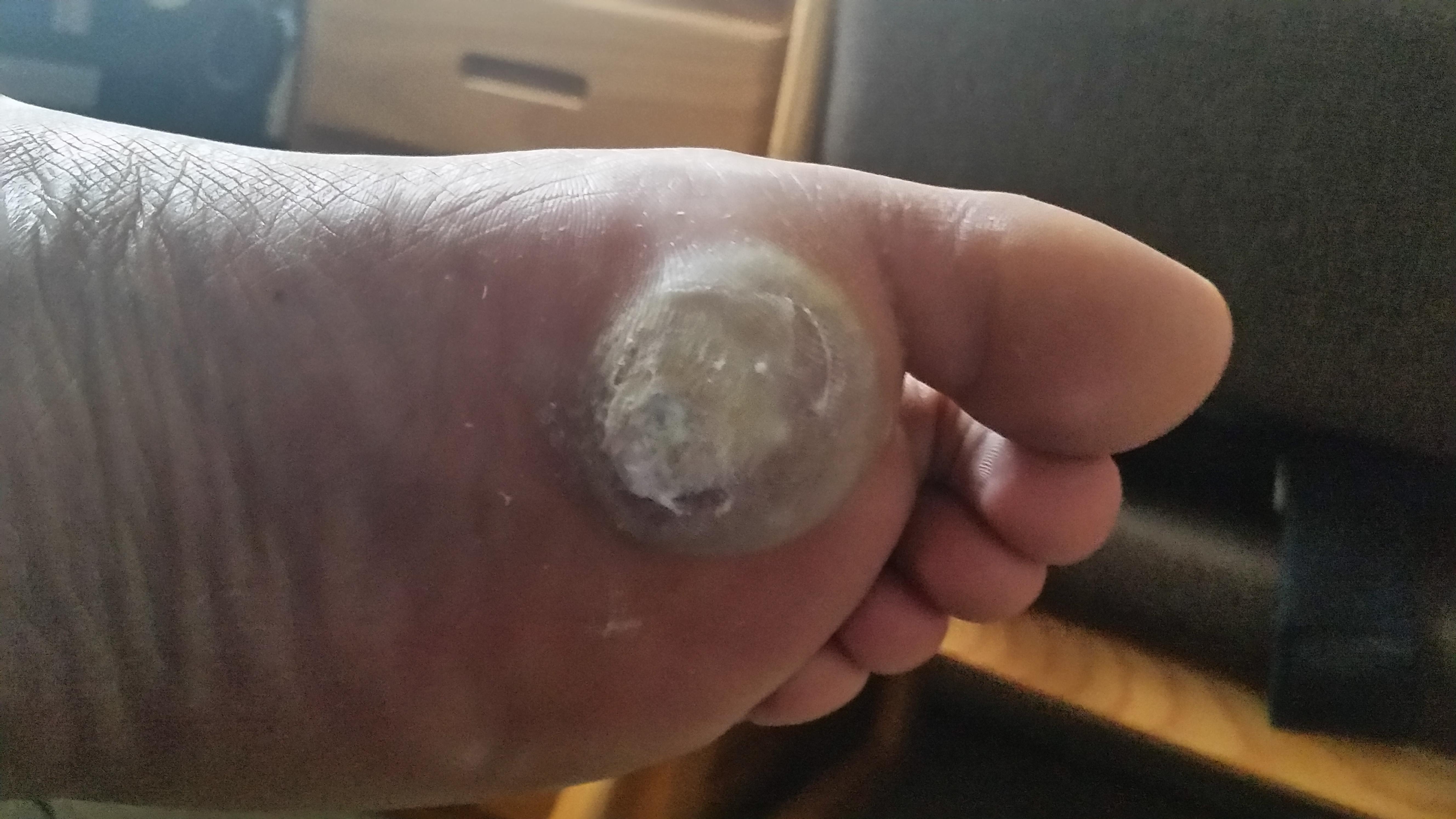 enterobiasis tedavisi pentru a vindeca viermii