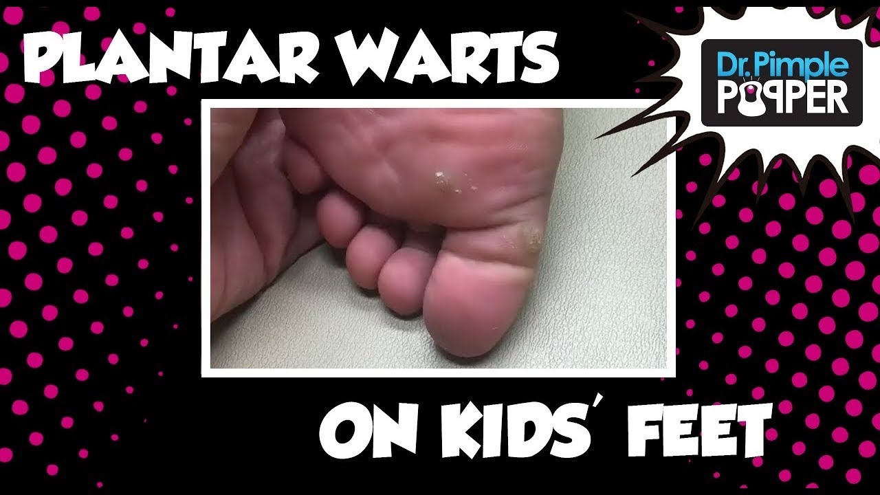 wart on foot child treatment