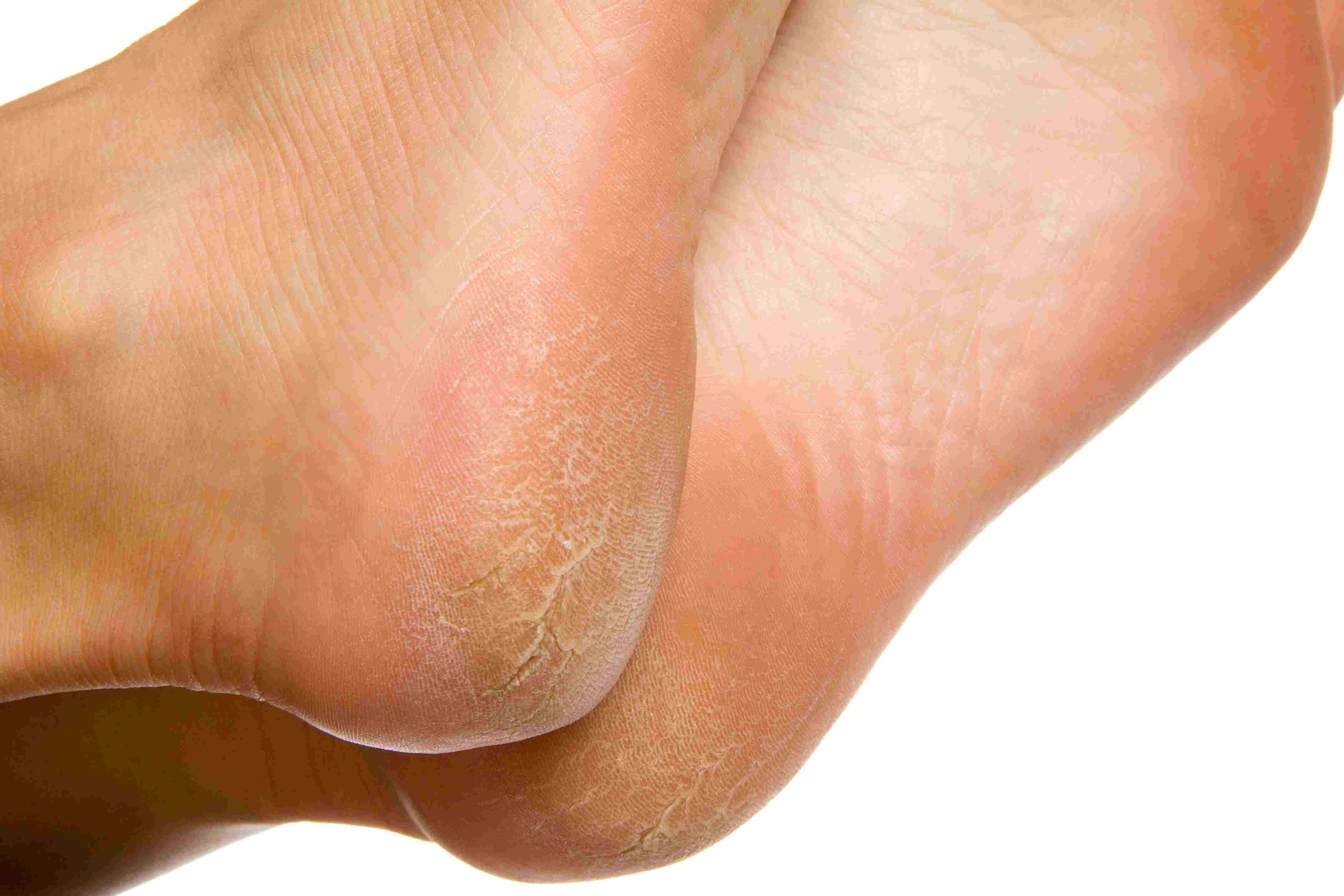Warts in foot sole - transroute.ro