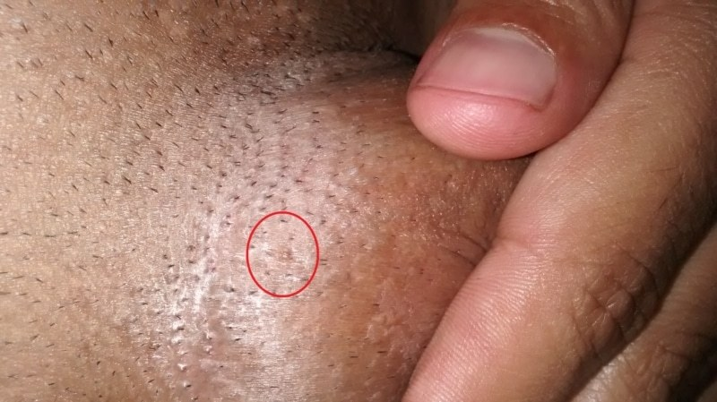 warts on foreskin
